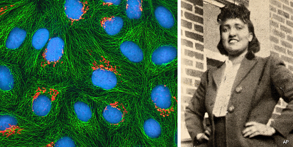 Henrietta Lacks and her cancer cells